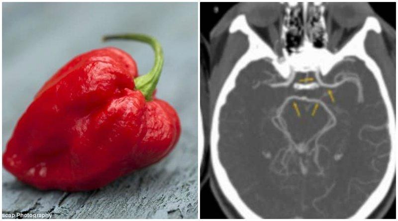Американец попал в больницу после того, как съел самый острый перец в мире больница, врачи, еда, здоровые, острый перец, перец чили, сша, чили