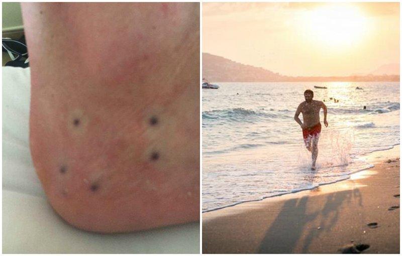 Британец обнаружил странные точки на стопе, и его жестоко затроллили в сети здоровые, интернет, морские животные, морской еж, океан, странно, форум, фото