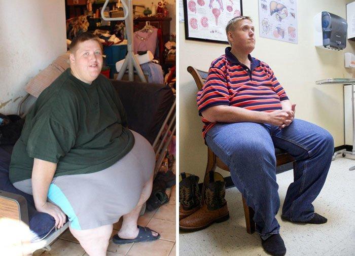 23.詹姆斯330公斤体重160公斤,前后人,和平,肥胖,减肥,改造,改造
