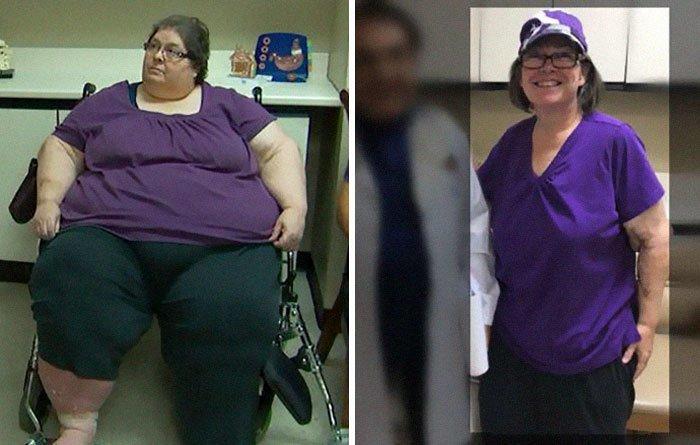 12.戴安娜从101公斤体重272公斤,前后人,和平,肥胖,减肥,改造,改造