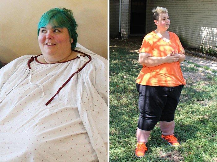 20.性别242公斤体重172公斤,前后人,和平,肥胖,减肥,改造,改造