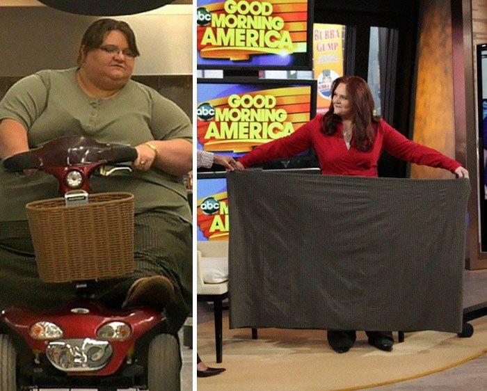 梅利莎莫里斯296公斤体重80公斤,前后人,和平,肥胖,减肥,改造,改造
