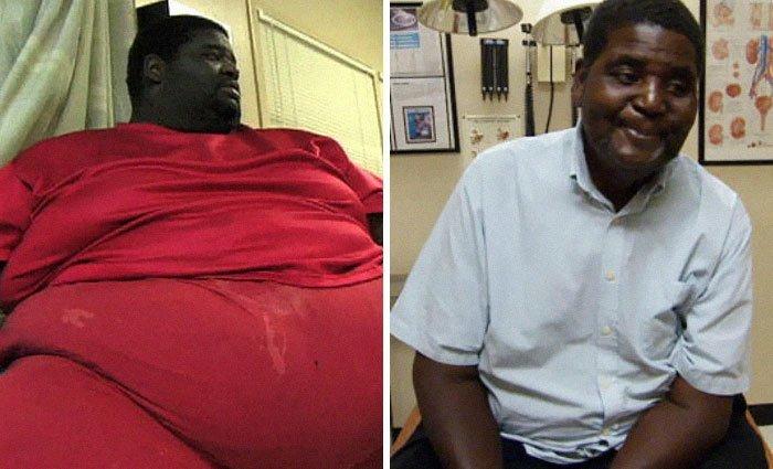 11.亨利35公斤体重113公斤,前后人,和平,肥胖,减肥,改造,改造