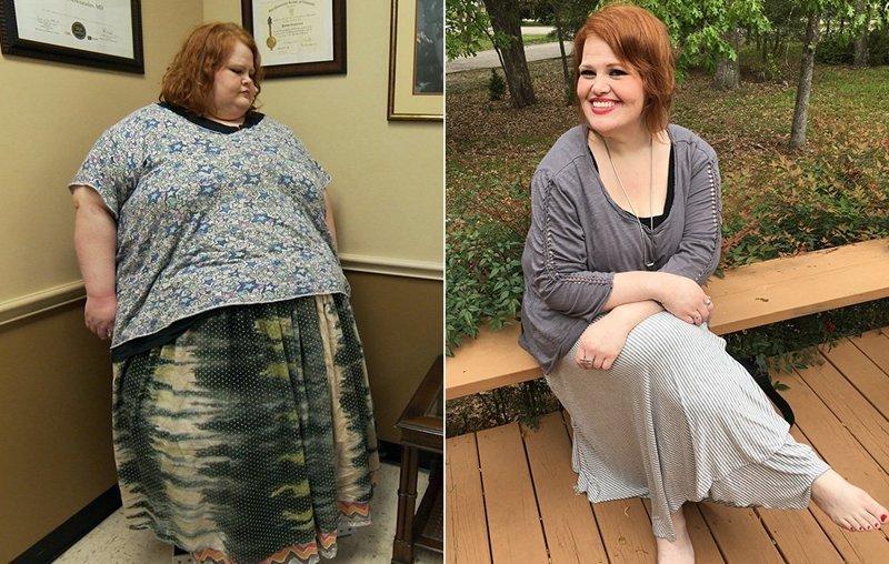 7.尼基韦伯斯特从294公斤中减重107公斤,前后人,和平,肥胖,减肥,改造,改造