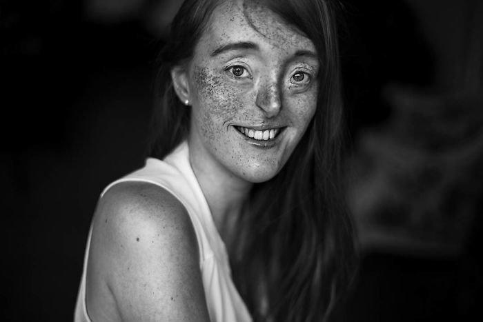 20.  девушка, дефекты, лицо, нестандартная красота, позитив, фотографии, фотосессия