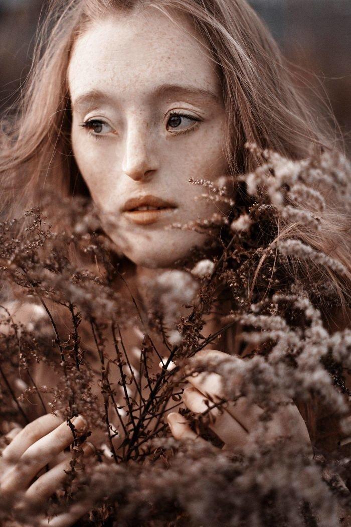 4.  девушка, дефекты, лицо, нестандартная красота, позитив, фотографии, фотосессия