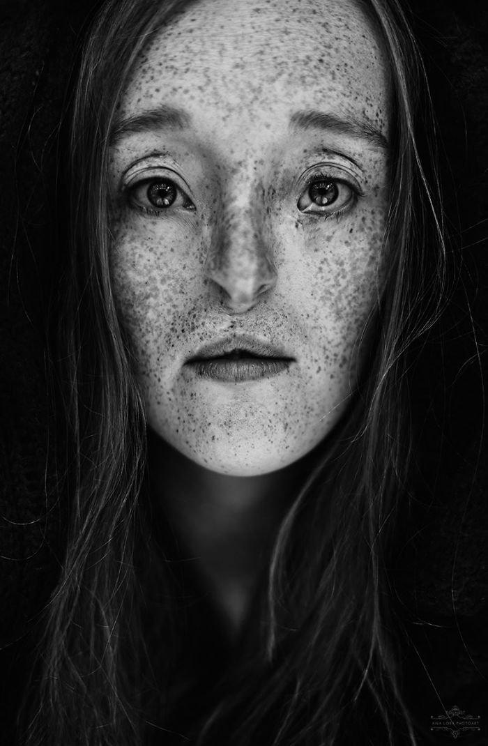 5.  девушка, дефекты, лицо, нестандартная красота, позитив, фотографии, фотосессия