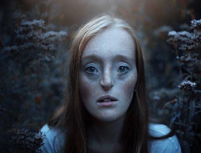 9.  девушка, дефекты, лицо, нестандартная красота, позитив, фотографии, фотосессия