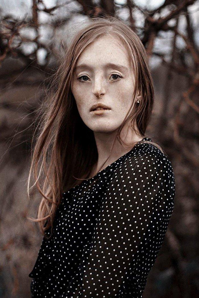 8.  девушка, дефекты, лицо, нестандартная красота, позитив, фотографии, фотосессия