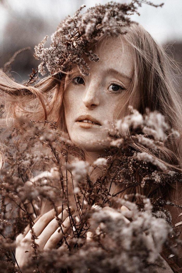 1.  девушка, дефекты, лицо, нестандартная красота, позитив, фотографии, фотосессия
