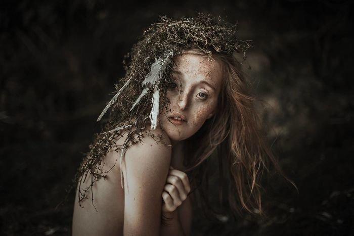 7.  девушка, дефекты, лицо, нестандартная красота, позитив, фотографии, фотосессия