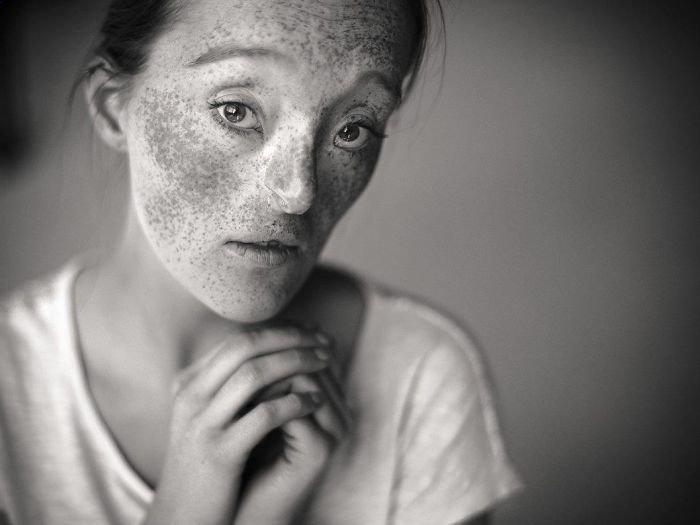 16.  девушка, дефекты, лицо, нестандартная красота, позитив, фотографии, фотосессия
