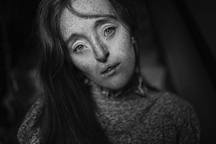 21.  девушка, дефекты, лицо, нестандартная красота, позитив, фотографии, фотосессия