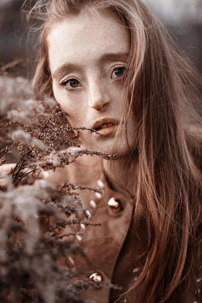 11. девушка, дефекты, лицо, нестандартная красота, позитив, фотографии, фотосессия