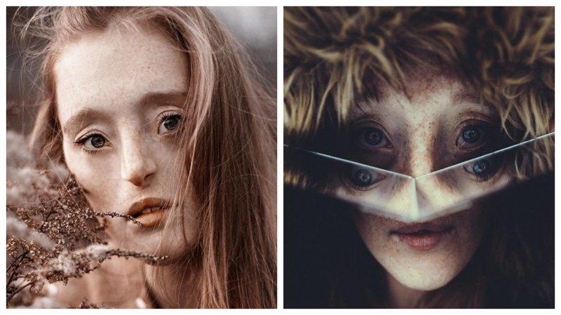 Девушка с дефектом лица доказывает, что истинная красота скрыта внутри девушка, дефекты, лицо, нестандартная красота, позитив, фотографии, фотосессия