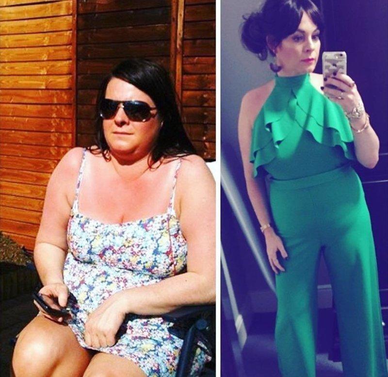 11. Лишний вес прибавляет возраст, Анна же захотела выглядеть моложе  До и после похудения, до и после, похудение, трансформация, фото