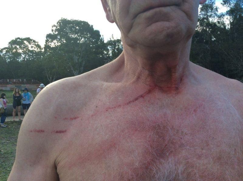 Кенгуру нападают на туристов из-за морковки кенгуру, морковка, турист
