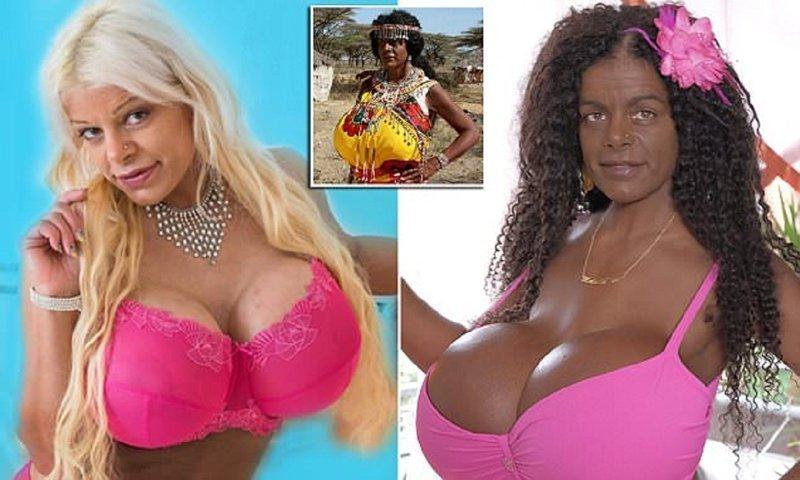 Белая модель пытается стать негритянкой Мартина Биг, меланин, пластическая операция, пластическая хирургия, смена расы, стать африканкой, странные люди, черное и белое