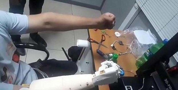 Невероятный момент: мужчина впервые управляет своей бионической рукой силой мысли! бионический протез, биороботы рядом, искусственная рука, медицина, наука, поразительно, протезирование, протезы