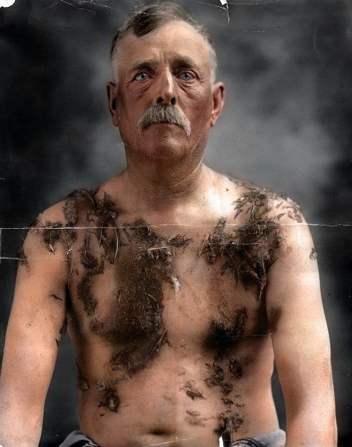 «Наказание позором» – валяние в смоле и перьях, 1918 год.  На фото американский фермер немецкого происхождения Джон Майнц, преданный местными жителями суду Линча за то, что не поддерживал мобилизацию. история, люди, события 20 века