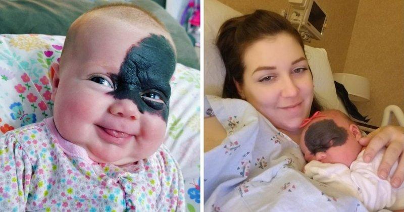 Малышка родилась с огромным пятном на лице, но родители не спешат его удалять!   в мире, дети, история, люди, родимое пятно
