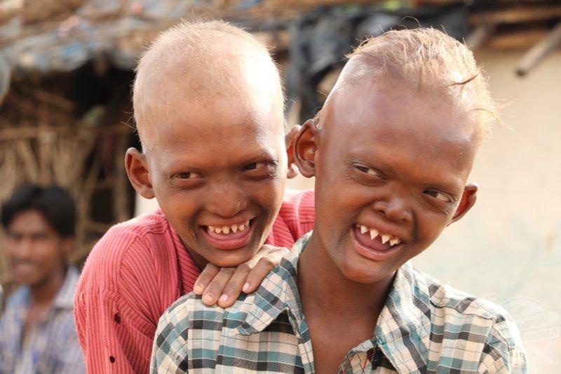Братья стали изгоями из-за редкой аномалии, превратившей их зубы в акульи аномалия, братья, в мире, внешность, зубы, история, люди