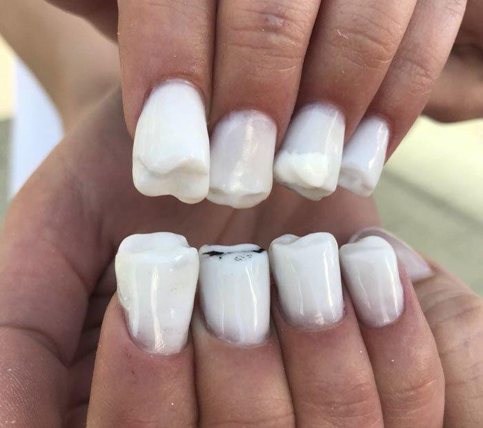 """Маникюр """"Кошмар стоматолога"""": креативно или чудовищно? nail sunny, зубы, зубы на пальцах, кошмар стматолога, красота это страшная сила, маникюр, необычно, оригинально"""