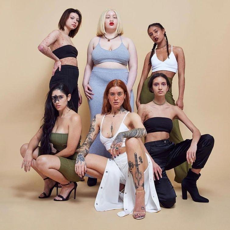 6 моделей с разными проблемами кожи собрались вместе, чтобы принять участие в крутой фотосессии в мире, внешность, история, красота, люди, модель