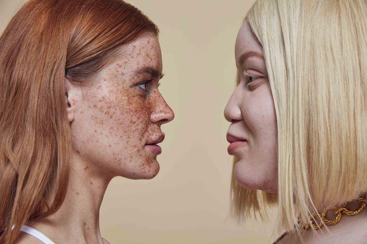 Модели с проблемами кожи собрались для крутой фотосессии, и они прекрасны как никогда в мире, внешность, история, красота, люди, модель