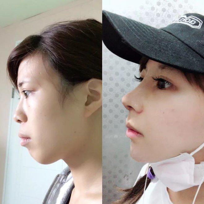 Девушка признает, что не все одобряют подобные косметические операции. Тем не менее, она утверждает, что возможность изменить свою внешность придала ей уверенности в себе. девушка, до и после, косплей, красота, операция, пластика, пластическая хирургия, фото