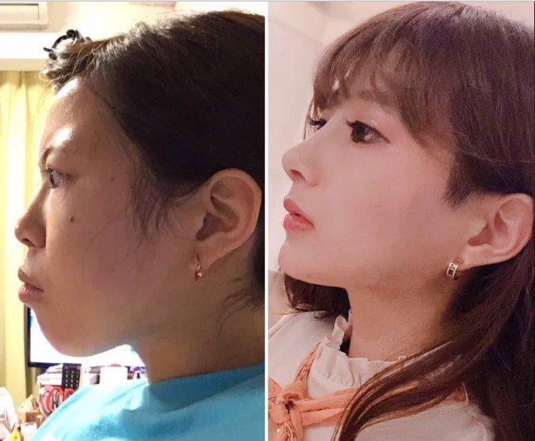Японская косплеерша потратила $64 000 на тотальную переделку внешности девушка, до и после, косплей, красота, операция, пластика, пластическая хирургия, фото