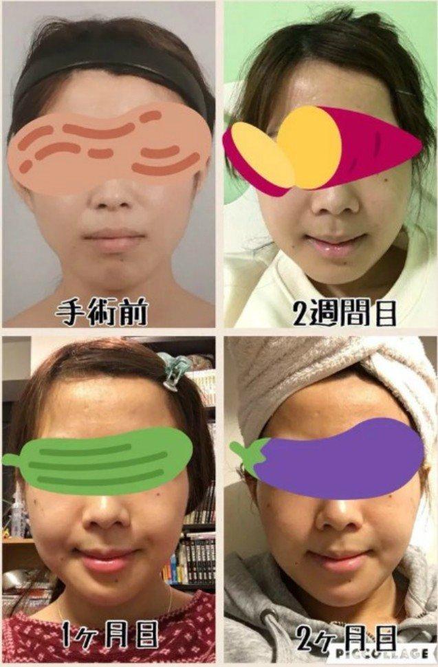 Meiji показала, как она выглядела до операции, через две недели, через месяц и после двух месяцев. девушка, до и после, косплей, красота, операция, пластика, пластическая хирургия, фото