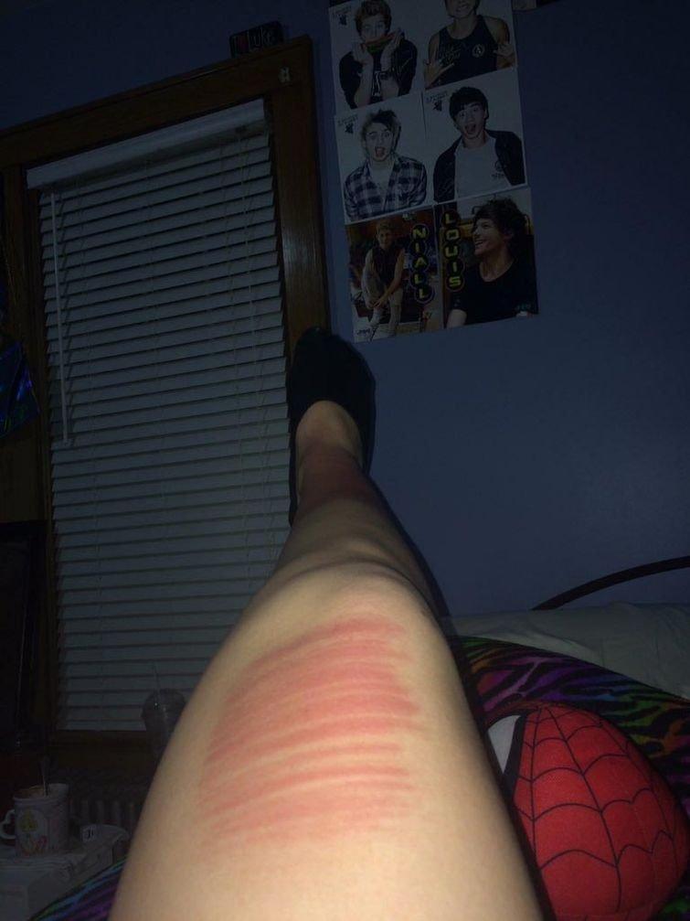 """В ответ на предыдущее фото эта девушка опубликовала своё фото с подписью: """"Тогда попробуй носить рваные капри"""" в мире, джинсы, загар, люди, ноги, рваные, узор"""