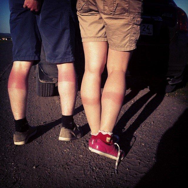 А к какому типу обычно относится ваш летний загар?  девушки, джинсы, дырявые джинсы, загар, мода, неудачный загар, фото, фэшн