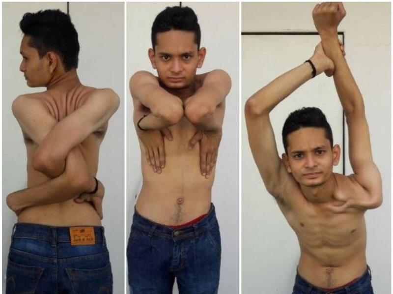 Индийский уникум: юноша научился выворачивать руки и ноги под любым углом индия, пластика, руки, тело, уникум