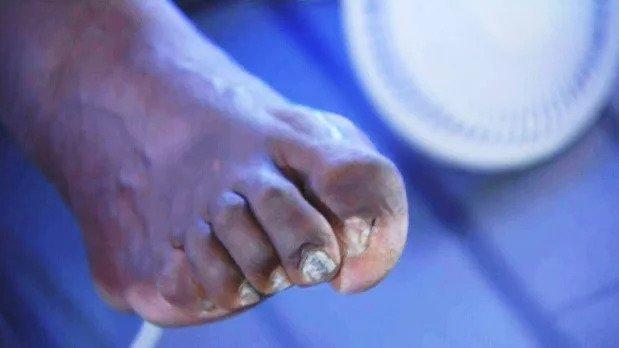 Шакил О'Нил nba, баскетбол, все ради славы, деформация, жертва, игроки, ноги, спортсмены