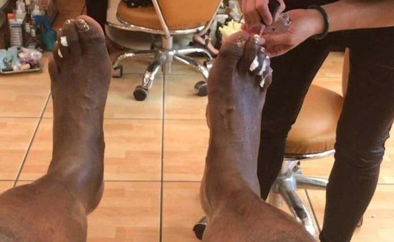 Но не волнуйтесь: после ухода из спорта Шакил регулярно ходит на педикюр и покрывает ногти золотым лаком nba, баскетбол, все ради славы, деформация, жертва, игроки, ноги, спортсмены