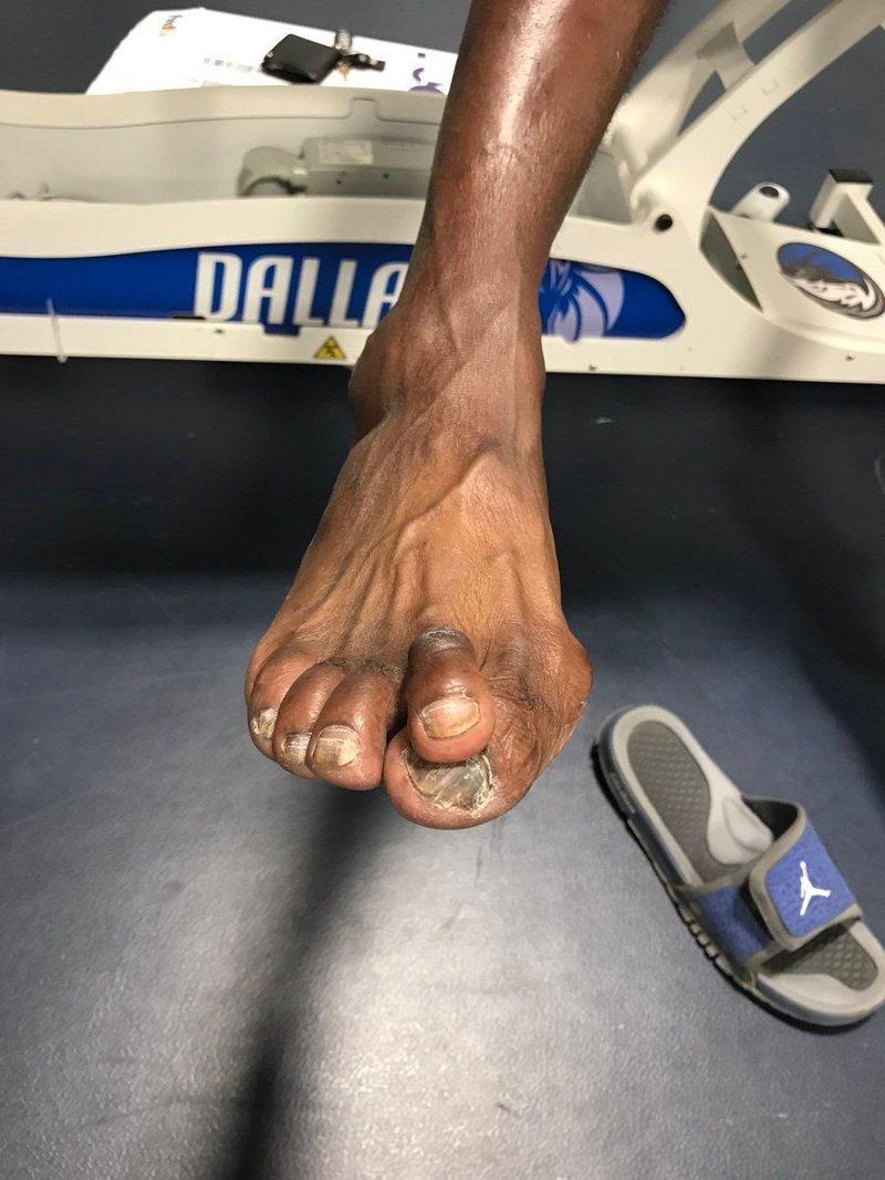 Даррелл Армстронг nba, баскетбол, все ради славы, деформация, жертва, игроки, ноги, спортсмены