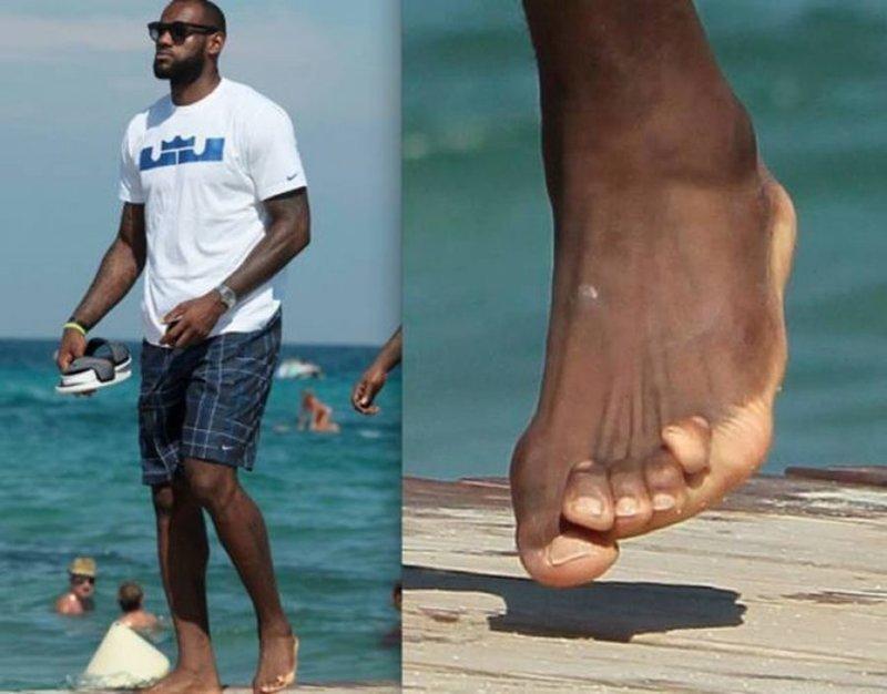 Леброн Джеймс nba, баскетбол, все ради славы, деформация, жертва, игроки, ноги, спортсмены