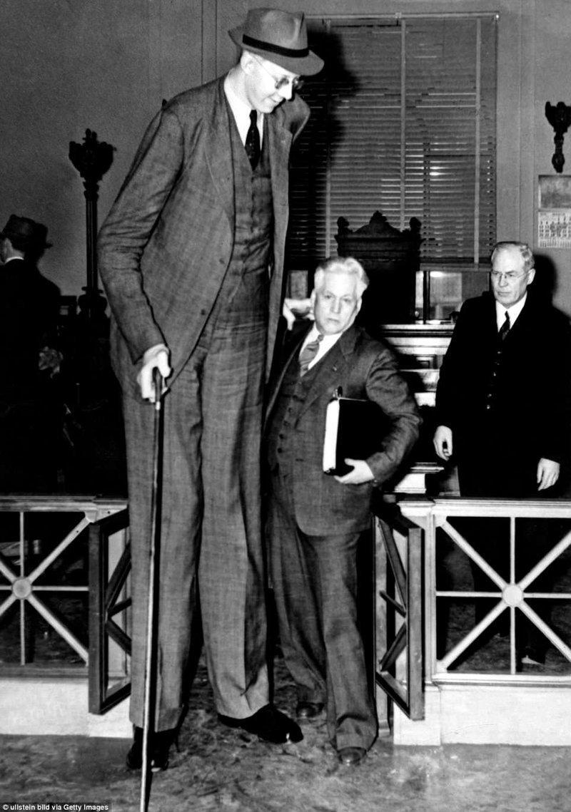 普通房屋,公共场所,机构,公共交通工具不适合他生长肢端肥大症,巨人,肿胀,记录,妇科记录,记录持有人吉尼斯,最高,最高男人