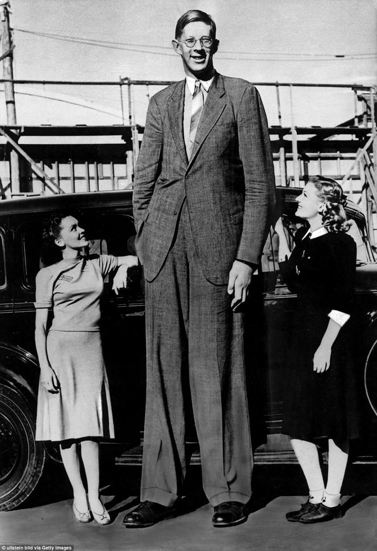 """罗伯特经常和那些问他的人合影。 他被给予绰号""""摩天大楼""""肢端肥大症,巨大,肿胀,唱片,gynes纪录,纪录保持者吉尼斯,最高,最高的男人"""
