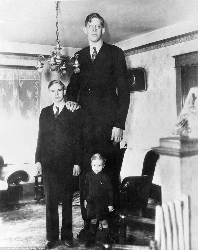 罗伯特是五个孩子中的老大。 在这张照片中,他和他的17岁生日那天有两个弟弟在一起,患有肢端肥大症,巨大肿胀,唱片,gynes唱片,纪录保持者吉尼斯,最高,最高男人