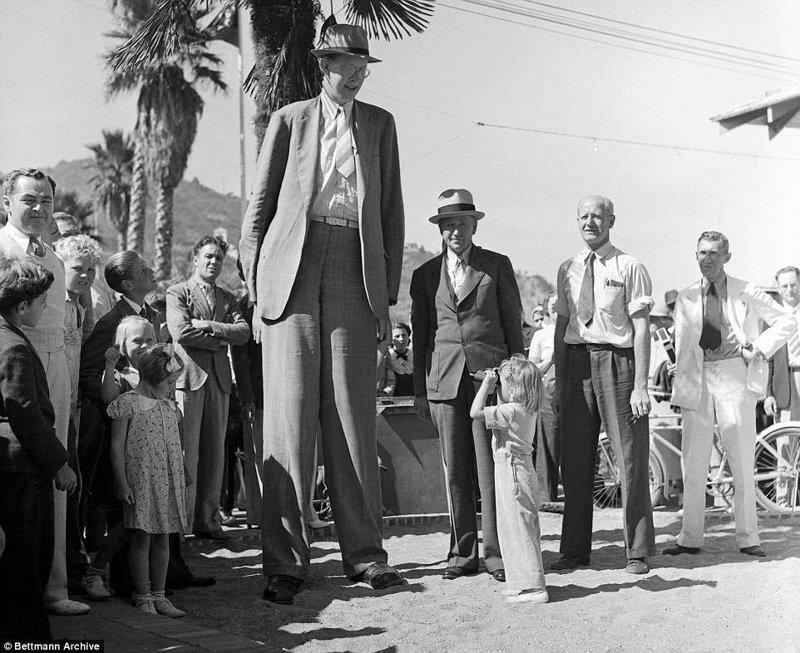 为了看到世界上最高的男人,宝宝需要一双双筒望远镜! 肢端肥大症,巨大肿瘤,创纪录,gynes纪录,纪录保持者吉尼斯,最高,最高的男人
