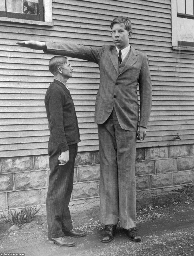 罗伯特在13岁时,他的父亲哈罗德acromegalia,巨人,肿胀,唱片,gynnes的纪录,吉尼斯纪录保持者,最高的,最高的男人