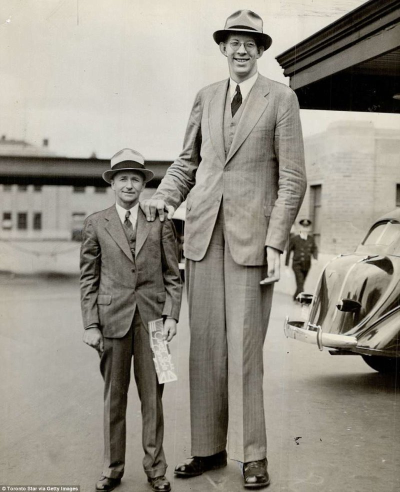 年仅19岁的罗伯特增长已经达到254厘米。相比较而言,他的父亲和他的180厘米似乎小人肢端肥大症,巨型肿瘤,纪录,吉尼斯纪录,吉尼斯纪录保持者,是最高的,最高的男人