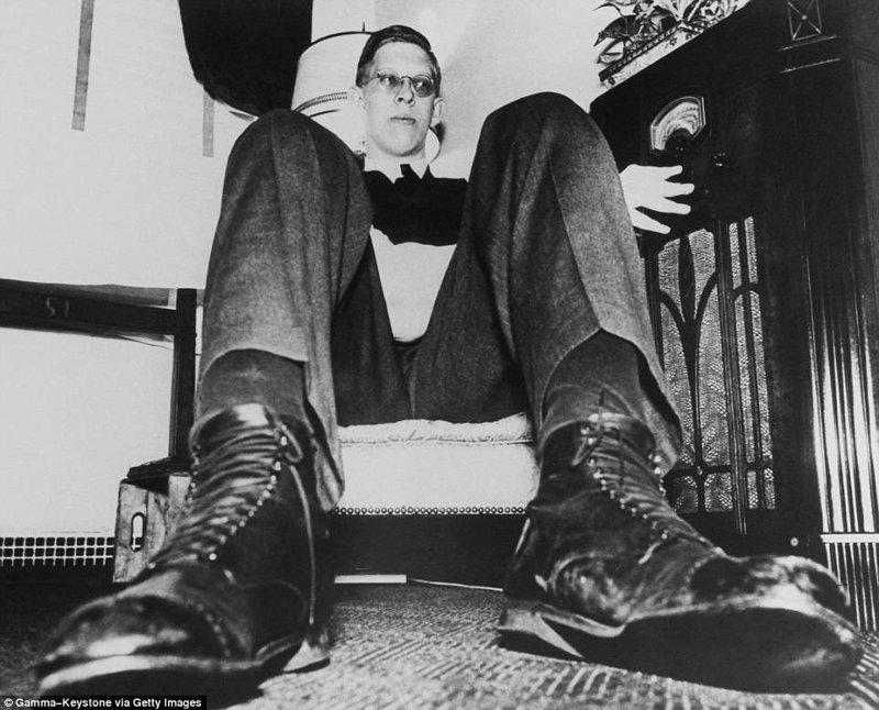 这些是刀子! 和鞋49尺寸肢端肥大,巨人,肿瘤,唱片,gynnes的纪录,吉尼斯的冠军,最高的,最高的男人