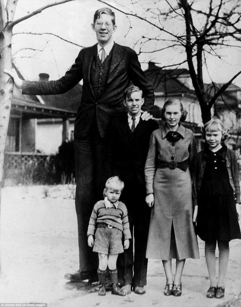 罗伯特瓦德洛在伊利诺斯与他的兄弟姐妹,1936年肢端肥大症,巨人,肿胀,记录,gynes纪录,纪录保持者吉尼斯,最高,最高的男人