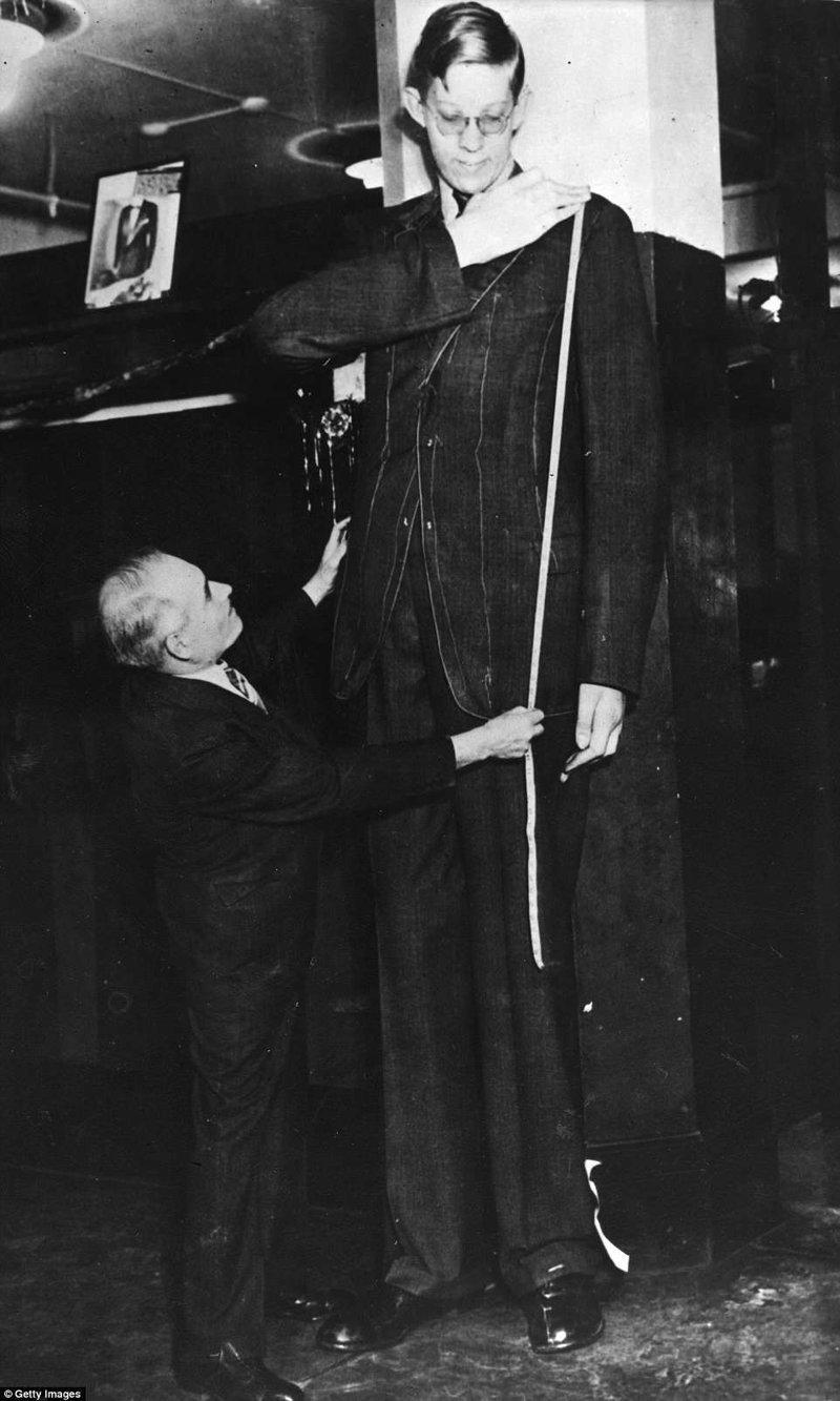 裁缝在工作室采取罗伯特的测量来为他起诉。 西装是需要他比普通人类生长肢端肥大症,巨型肿瘤,纪录,吉尼斯纪录,吉尼斯纪录保持者,是最高的,最高的人的三倍多布