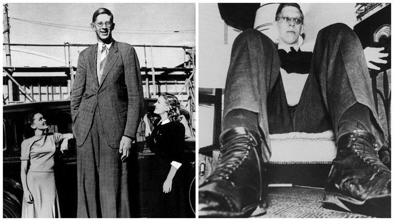 良好的巨头:世界上最高的人,罗伯特·瓦德罗肢端肥大症,巨型肿瘤,纪录,吉尼斯纪录,吉尼斯纪录保持者,是最高的,最高的男人