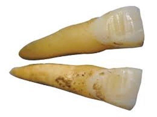 Так считали до этих самых пор, пока не нашли в захоронении викингов жертв резни в Дорсете череп вот с такими зубами: интересно, история, мумии, наука, скелеты